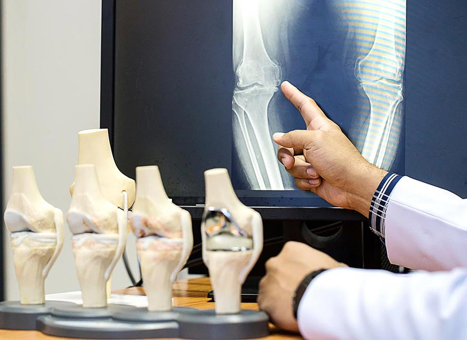 The Mako Knee Replacement: What Do You Need to Know?